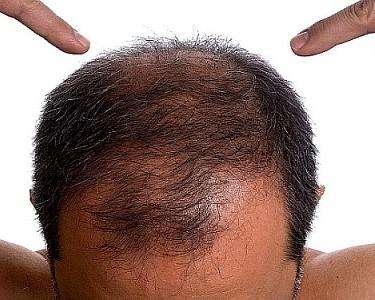 Восстановление волос в домашних условиях для мужчин