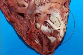Рубец на сердце после инфаркта фото