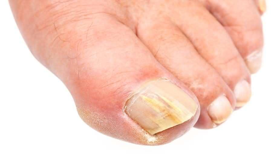 Как вылечить дрожжевой грибок на ногах